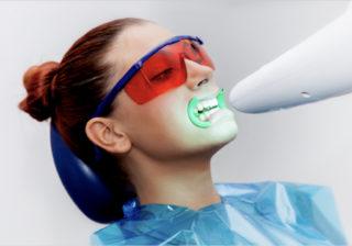sbiancamento denti lampada led