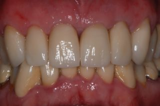 corona-dentaria-ceramica-su-zirconia-studio-dentistico-marina-anselmi