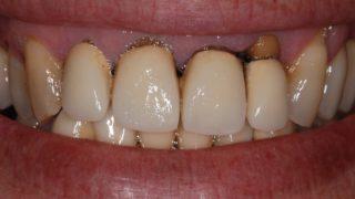 corona dentaria prima della cura studio dentistico marina anselmi
