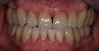 ricostruzione-smalto denti-dopo-studio-dentistico-marina-anselmi