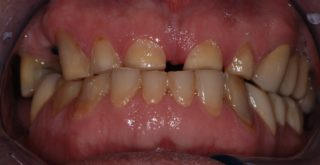 ricostruzione-smalto-denti-prima-studio-dentistico-marina-anselmi