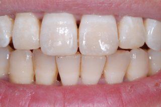 ricostruzione-smalto-denti-studio-dentistico-marina-anselmi-dopo