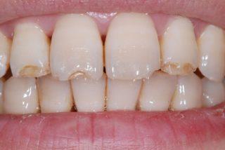 ricostruzione-smalto-denti-studio-dentistico-marina-anselmi-prima