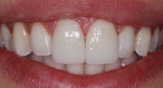 faccette-dentali-senza-limare-il-dente-dopo-studio-dentistico-marina-anselmi
