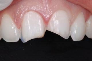 faccette-dentali-senza-limare-il-dente-preparazione-studio-dentistico-marina-anselmi