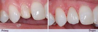 faccette-dentali-senza-limare-il-dente- prima-dopo-studio-dentistico-marina-anselmi