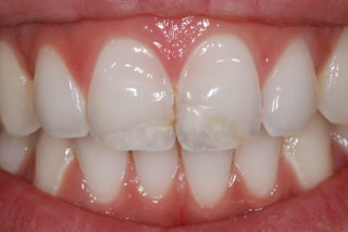 faccette dentali-senza-limare-il-dente-prima-studio-dentistico-drssa-marina-anselmi