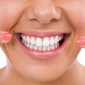 faccette dentali senza limare il dente