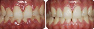 quando-lavare-i-denti-studio-dentistico-marina-anselmi-adulti