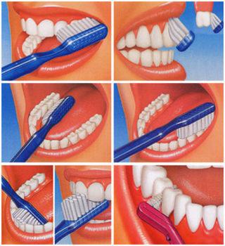 quando-lavare-i-denti-studio-dentistico-marina-anselmi-spazzolino