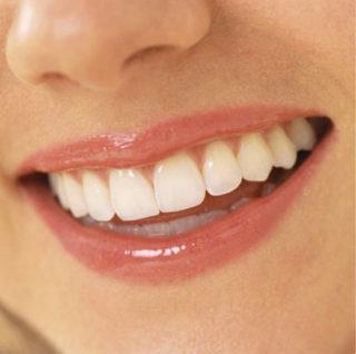 faccette-dentali-per-denti-storti-studio-dentistico-marina-anselmi